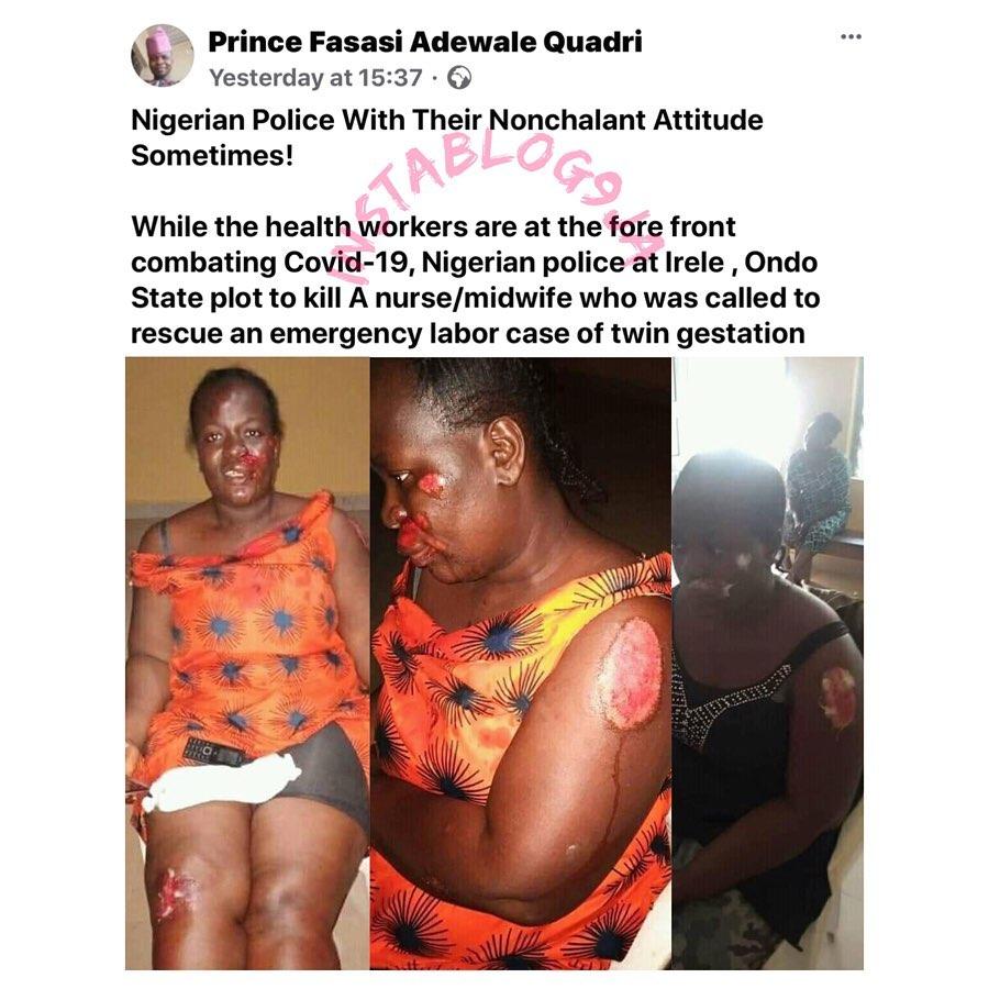 Nurse on emergency duty, brutalized and abandoned by policemen in Ondo State. [Swipe]