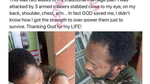 Armed robbers ferociously attack blogger Arunaye few weeks to his wedding