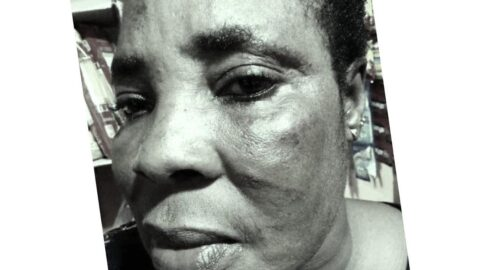 Lady left with bruises after alleged police brutality .